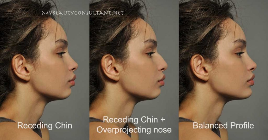 How to choose between nose job and chin implant
