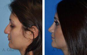 rhinoplasty_nose_bev_4jCNq