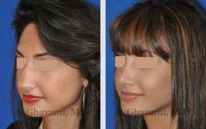 rhinoplasty_nose_bev_6cIxq