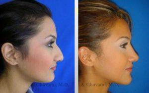 rhinoplasty_nose_bev_L7sG7