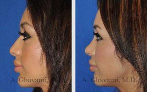 rhinoplasty_nose_bev_S0Ti5