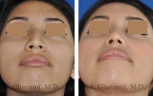 rhinoplasty_nose_bev_lJI18